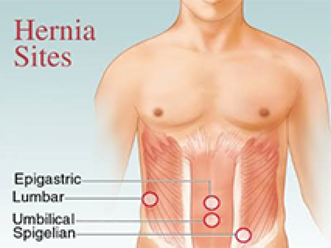 What is a hernia?